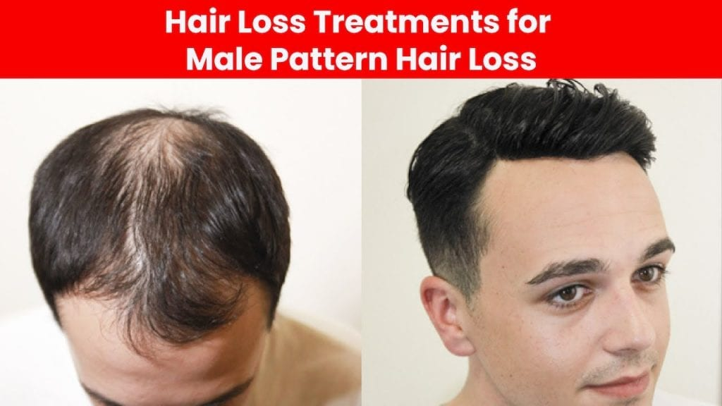What Causes Hair Loss and What Supplement Will Stop it?