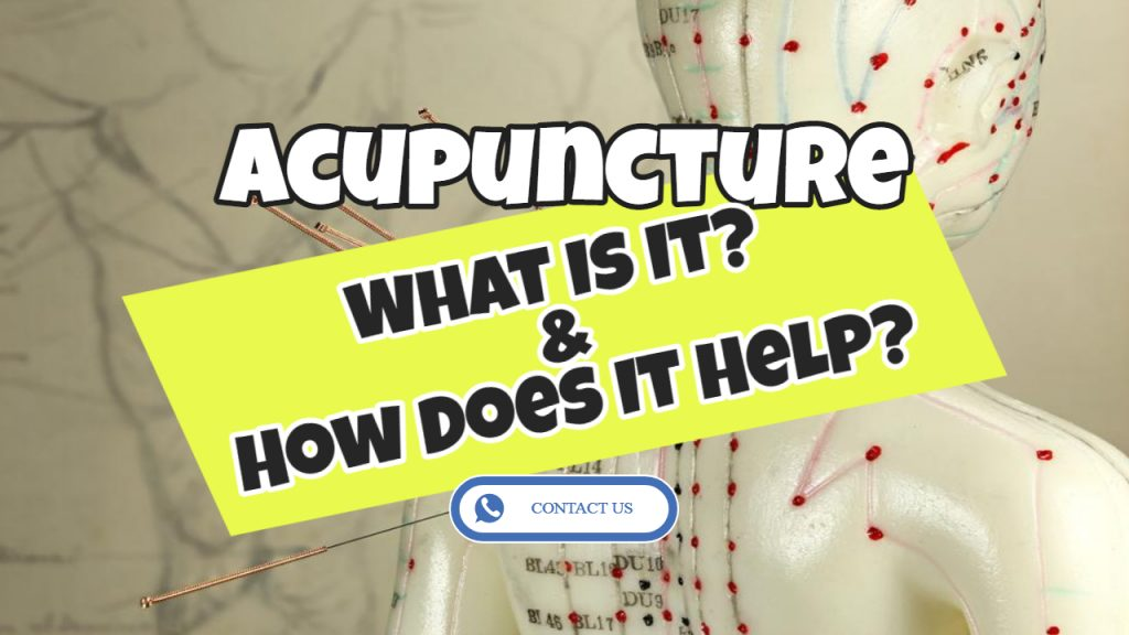 What Exactly is Acupuncture and How Does Acupuncture Work?